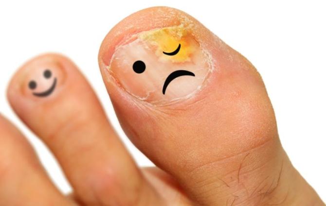 Pourquoi l'onguent Zenidol est plus efficace que les autres onguents contre le dermatophyte
