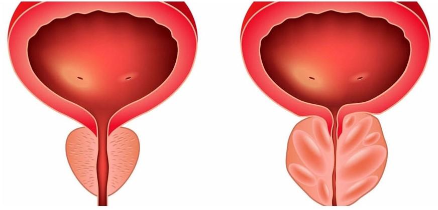 Prostate normale et enflammée